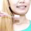 Comment nettoyer les dents avec des accolades