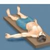 Comment fixer une luxation de l'épaule