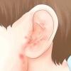 Comment se débarrasser de la cire d'oreille