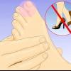 Comment guérir un orteil cassé