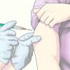 Comment prévenir la varicelle