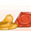 Comment prévenir la grossesse si un préservatif se déchire