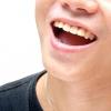 Comment protéger vos dents contre l'usure par acide