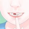 Comment retirer une dent lâche