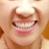Comment traiter la maladie parodontale